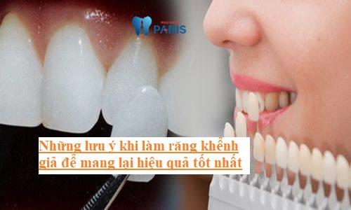 Hiện nay làm răng khểnh giả bằng cách nào tốt nhất? 3