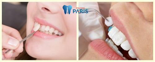 Hiện nay làm răng khểnh giả bằng cách nào tốt nhất? 2