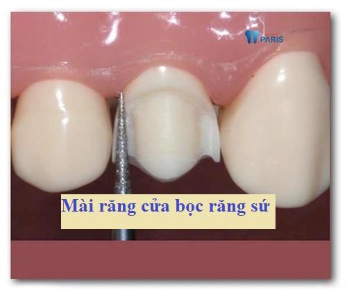 Mài răng cửa bọc răng sứ có đau không? Lưu ý trước và sau khi thực hiện 1