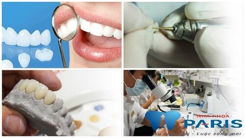 Bọc răng sứ Cercon có tốt không - Chia sẻ từ chuyên gia 3