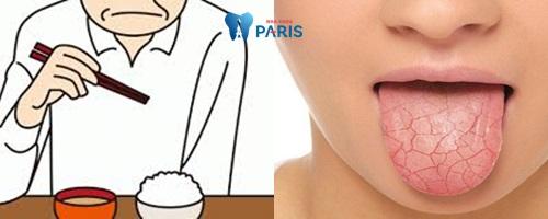 Tìm hiểu nguyên nhân, dấu hiệu, cách khắc phục miệng khô và đắng 2