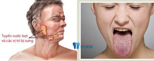 Tìm hiểu nguyên nhân, dấu hiệu, cách khắc phục miệng khô và đắng 1