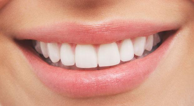 GIẢI ĐÁP: Có nên làm cầu răng không? Làm cầu răng có tốt không? 2