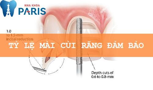 Bọc răng sứ có đau không phụ thuộc vào tỉ lệ mài cùi răng