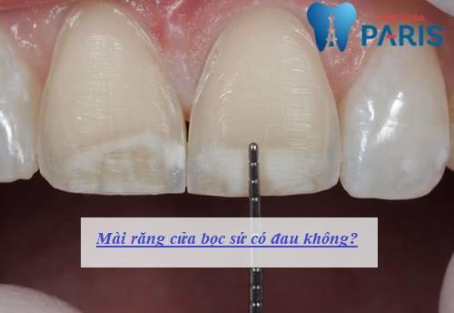 Mài răng cửa bọc răng sứ có ĐAU không, ẢNH HƯỞNG gì không? 1