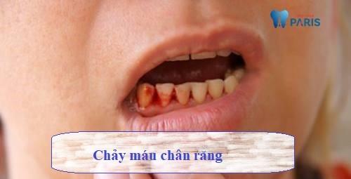Nguyên nhân, ảnh hưởng, cách khắc phục chảy máu chân răng 1