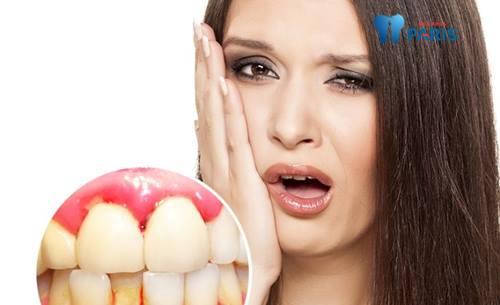 Nguyên nhân, ảnh hưởng, cách khắc phục chảy máu chân răng 3