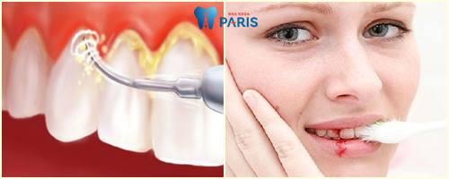 Nguyên nhân, ảnh hưởng, cách khắc phục chảy máu chân răng 2