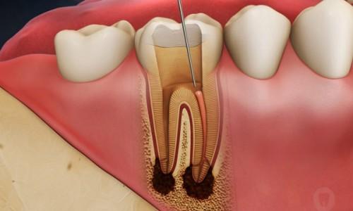 Có cần lấy tủy khi bọc răng sứ cho răng sâu không?