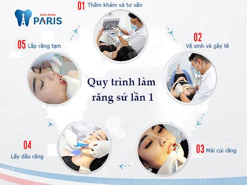 Quy trình bọc răng sứ cho răng móm lần 1 tại Nha khoa Paris