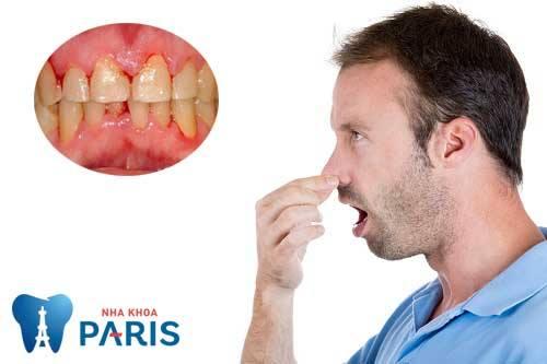 Chảy máu chân răng khi ngủ dậy có nguy hiểm không? BS Tư Vấn 2
