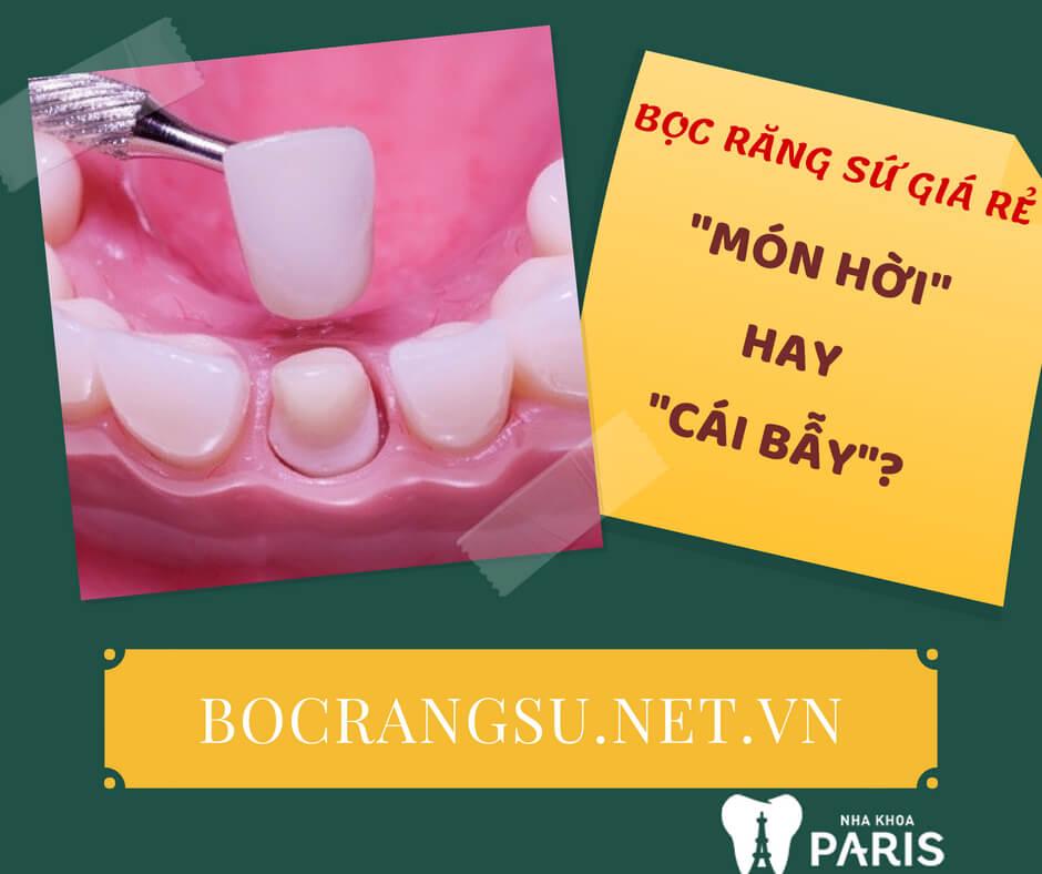 Cảnh giác với những dịch vụ bọc răng sứ giá rẻ hiện nay! 1