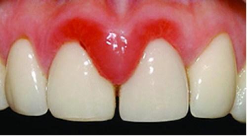 Cảnh giác với những dịch vụ bọc răng sứ giá rẻ hiện nay! 2