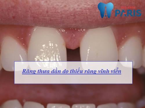 Nguyên nhân răng thưa & Cách làm răng KHÍT lại AN TOÀN hiệu quả 1