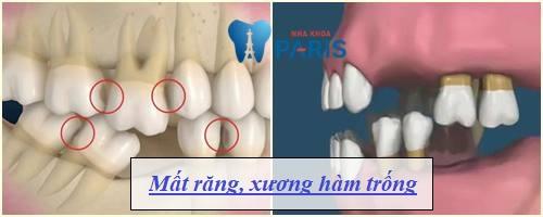 Nguyên nhân răng thưa & Cách làm răng KHÍT lại AN TOÀN hiệu quả 2