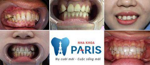 Chi Phí Bọc răng sứ giá bao nhiêu tiền? [Bảng Giá CHUẨN 2018] 6