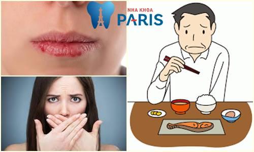 Ngủ dậy miệng khô và đắng - Nguyên nhân & Cách khắc phục TẠI NHÀ 1