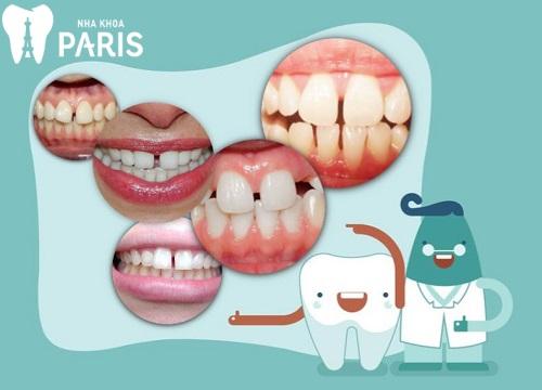 Răng thưa nên làm gì? 3 Cách trị răng bị thưa AN TOÀN & TRIỆT ĐỂ 1