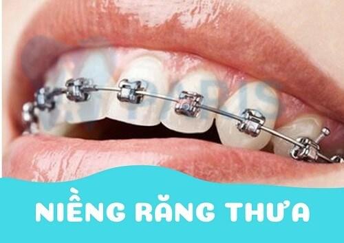 Răng thưa nên làm gì? 3 Cách trị răng bị thưa AN TOÀN & TRIỆT ĐỂ 2