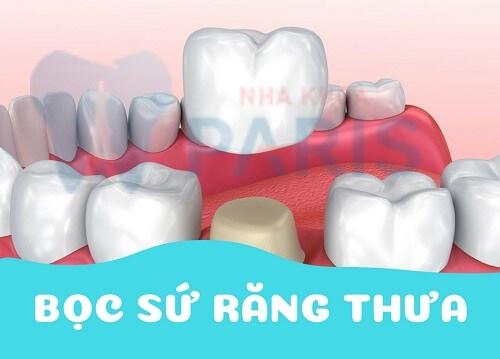 Răng thưa nên làm gì? 3 Cách trị răng bị thưa AN TOÀN & TRIỆT ĐỂ 4