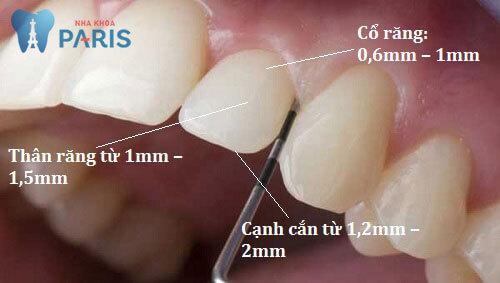 Có nên mài răng cửa hô vẩu không? Mài răng cửa có đau không? 2