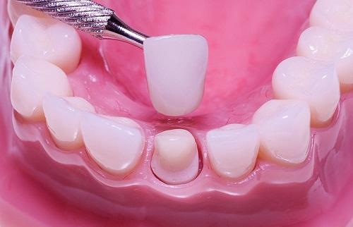 Có nên mài răng cửa hô vẩu không? Mài răng cửa có đau không? 3