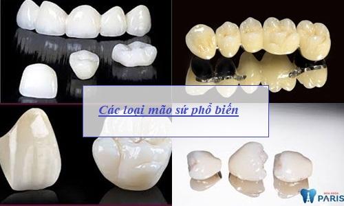 Bọc răng sứ có bền không, tồn tại được bao lâu? Chuyên gia chia sẻ 2