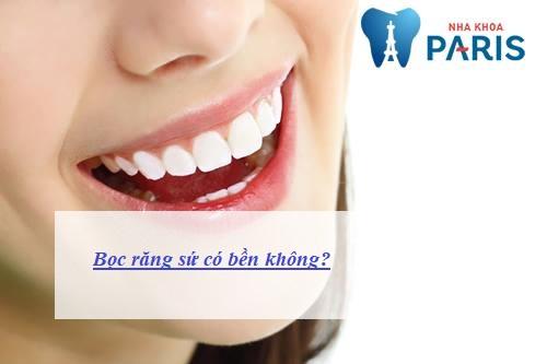 Bọc răng sứ có bền không, tồn tại được bao lâu? Chuyên gia chia sẻ 1
