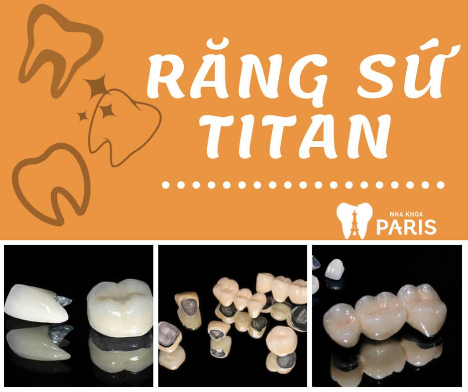 Bọc răng sứ titan - Răng sứ titan là gì?