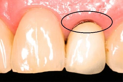 Bọc răng sứ titan - Nhược điểm của dòng răng sứ này