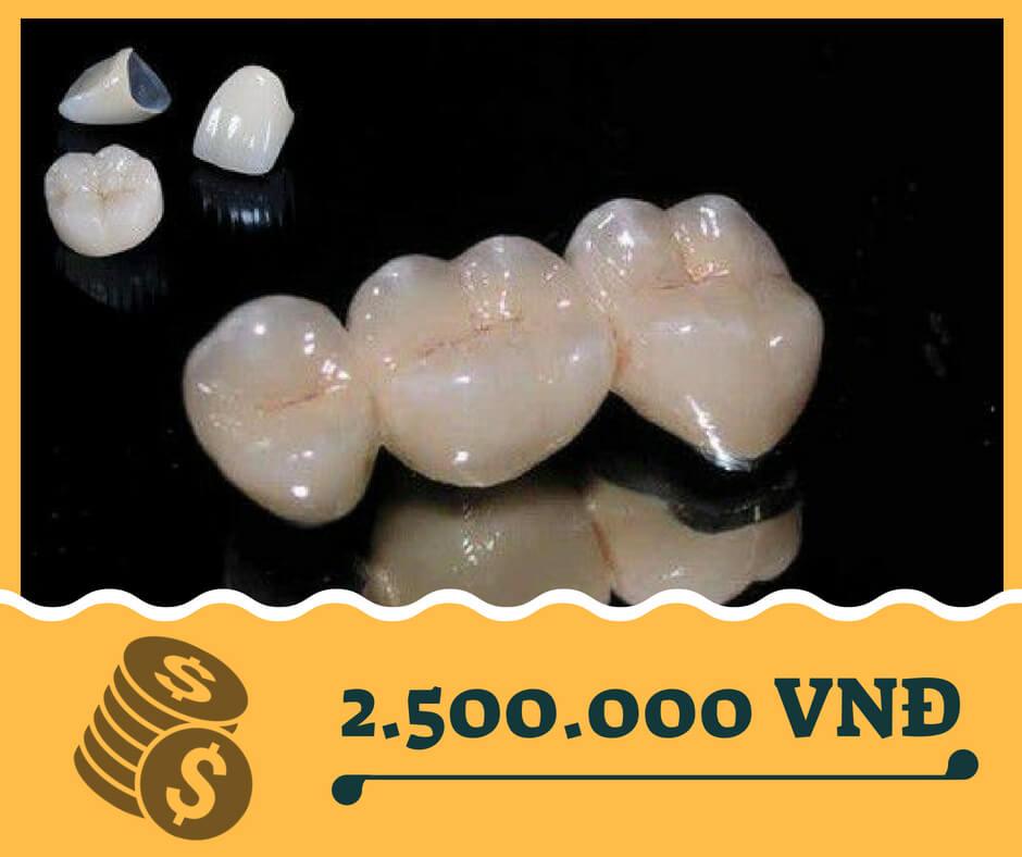 Bọc răng sứ titan - Giá bọc răng sứ titan tại Nha khoa Paris