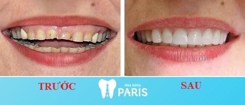Bọc răng sứ titan - Khách hàng bọc răng sứ tại nha khoa Paris