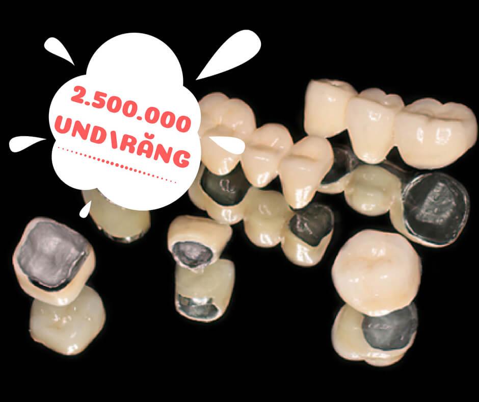 Bọc răng sứ titan giá bao nhiêu tiền - Bảng giá mới & Chuẩn nhất 2018 1