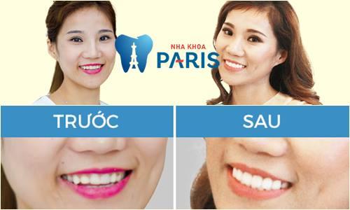 Có nên bọc răng sứ thẩm mỹ không? Chia sẻ thực tế từ khách hàng 7