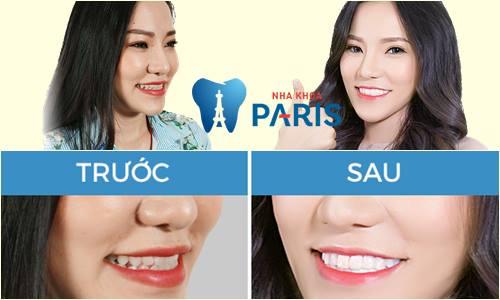 Có nên bọc răng sứ thẩm mỹ không? Chia sẻ thực tế từ khách hàng 6