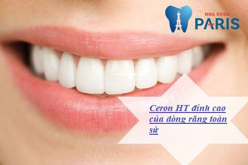 Răng sứ Cercon HT đỉnh cao của dòng răng toàn sứ