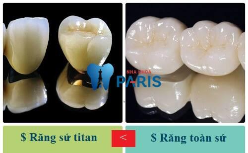 răng sứ titan có tốt không 13