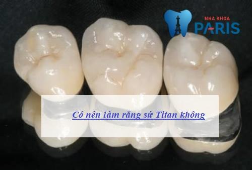 Có nên làm răng sứ Titan không? Giải đáp từ chuyên gia