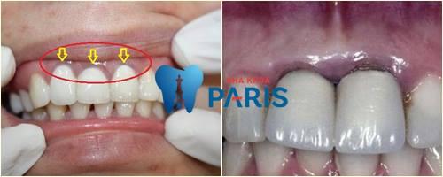 Có nên làm răng sứ Titan không? Đối với trường hợp răng cửa sứt mẻ thì sao?