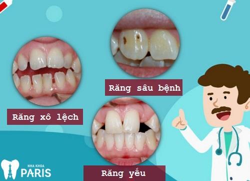 NGUY CƠ tiềm ẩn khi áp dụng mẹo chữa răng thưa Tại Nhà 2