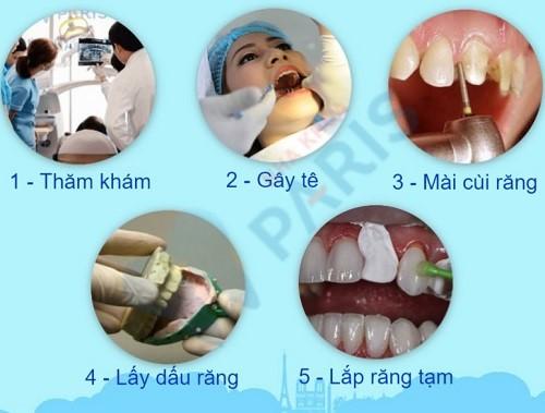 Quy trình làm răng sứ đạt chuẩn quốc tế đảm bảo AN TOÀN 1