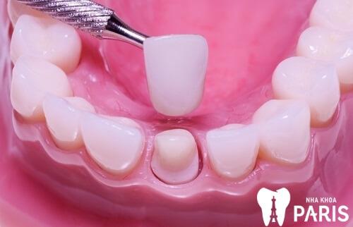 Quy trình làm răng sứ đạt chuẩn quốc tế đảm bảo AN TOÀN 3