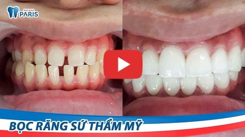 Răng thưa nên làm gì? 3 Cách trị răng bị thưa AN TOÀN & TRIỆT ĐỂ 6