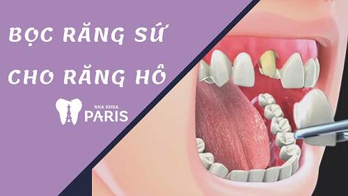 Trường hợp nào có thể thực hiện bọc răng sứ cho răng cửa bị hô? 1