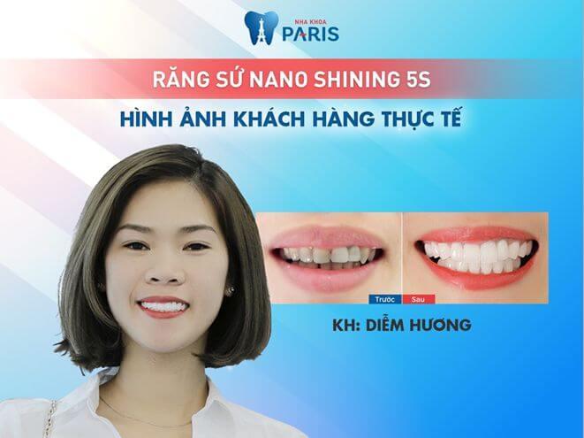 Trường hợp nào có thể thực hiện bọc răng sứ cho răng cửa bị hô? 4