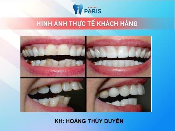Trường hợp nào có thể thực hiện bọc răng sứ cho răng cửa bị hô? 7