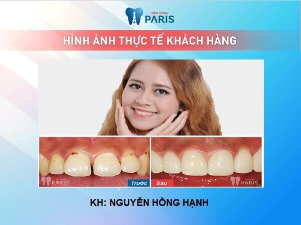 Trường hợp nào có thể thực hiện bọc răng sứ cho răng cửa bị hô? 5