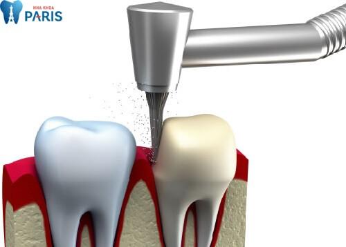 Bọc răng sứ có HẠI không, có ẢNH HƯỞNG gì tới sức khỏe không? 2