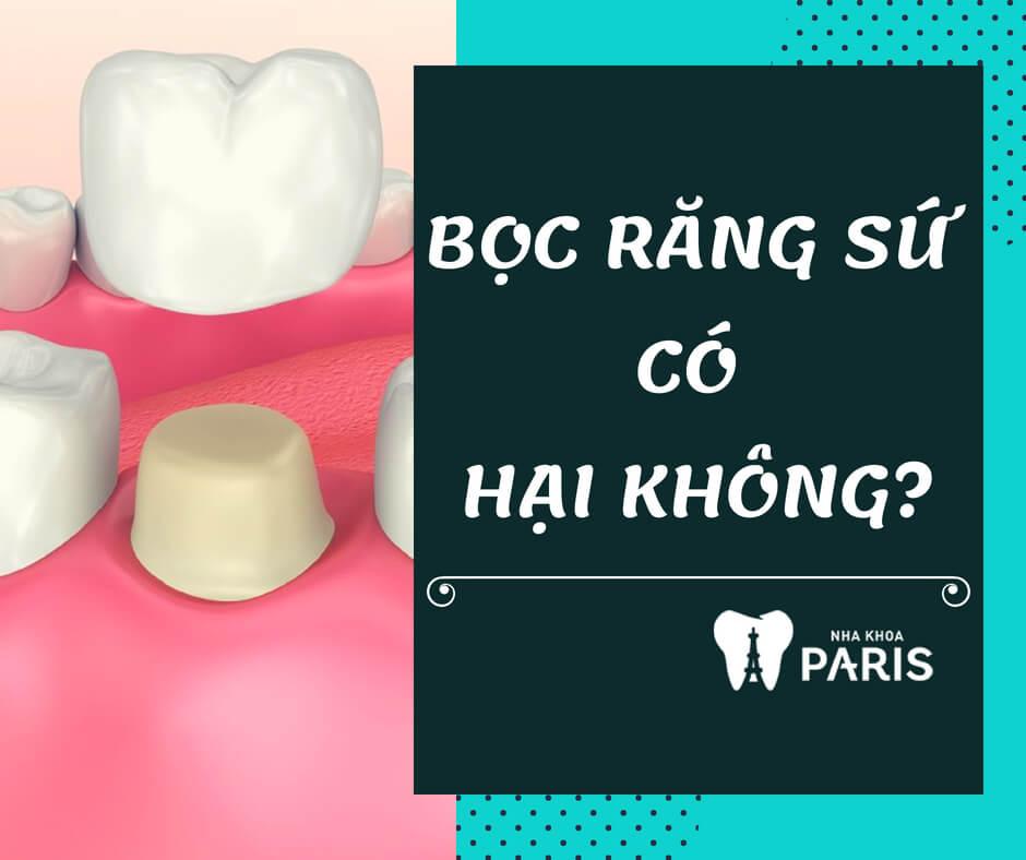 Bọc răng sứ có HẠI không, có ẢNH HƯỞNG gì tới sức khỏe không? 1