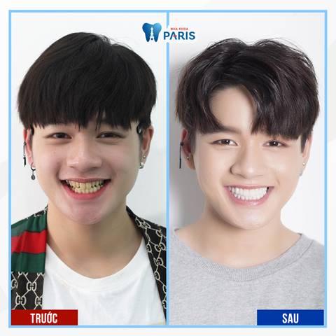 Bọc răng sứ là gì? Ca sĩ Leo thay đổi khi bọc răng sứ